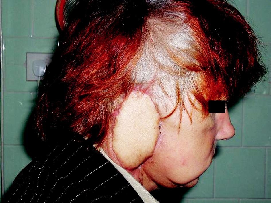 Kazuistika 1. 54-ročná pacientka dva mesiace po záchrannej operácii s rekonštrukciou defektu dolným myokutánnym lalokom z m. trapezius.