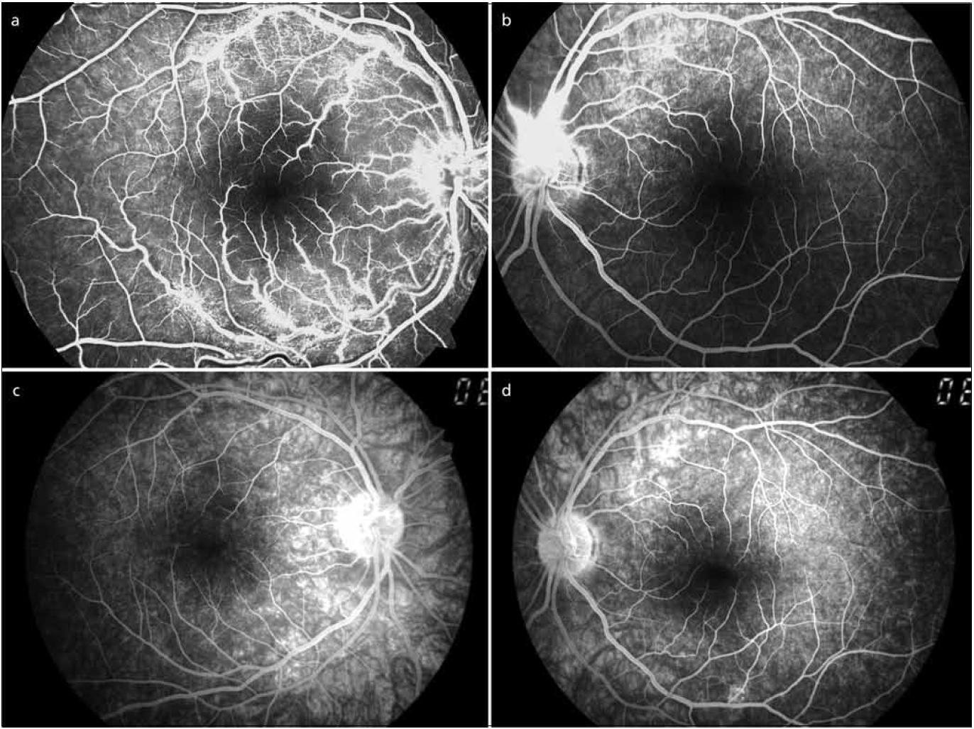 V horní polovině vstupní fluorescenční angiografie pravého a levého oka (2a, b), v dolní polovině kontrolní fluorescenční angiografie pravého a levého oka po dvou měsících (2c, d).