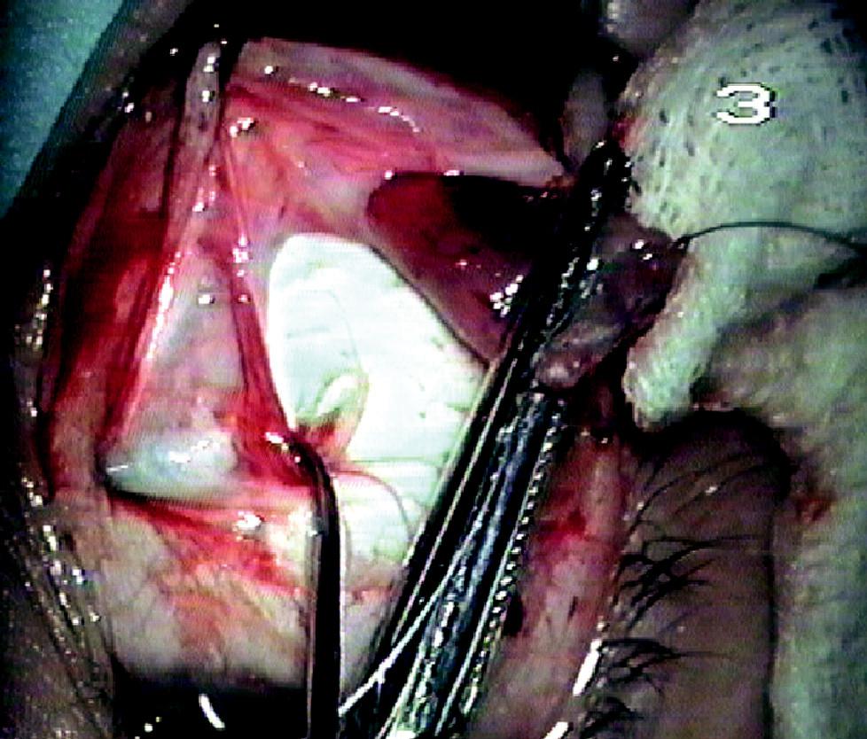 Dolní šikmý sval zachycený v peánu, svalovým háčkem zpřehledněný úpon dolního přímého svalu