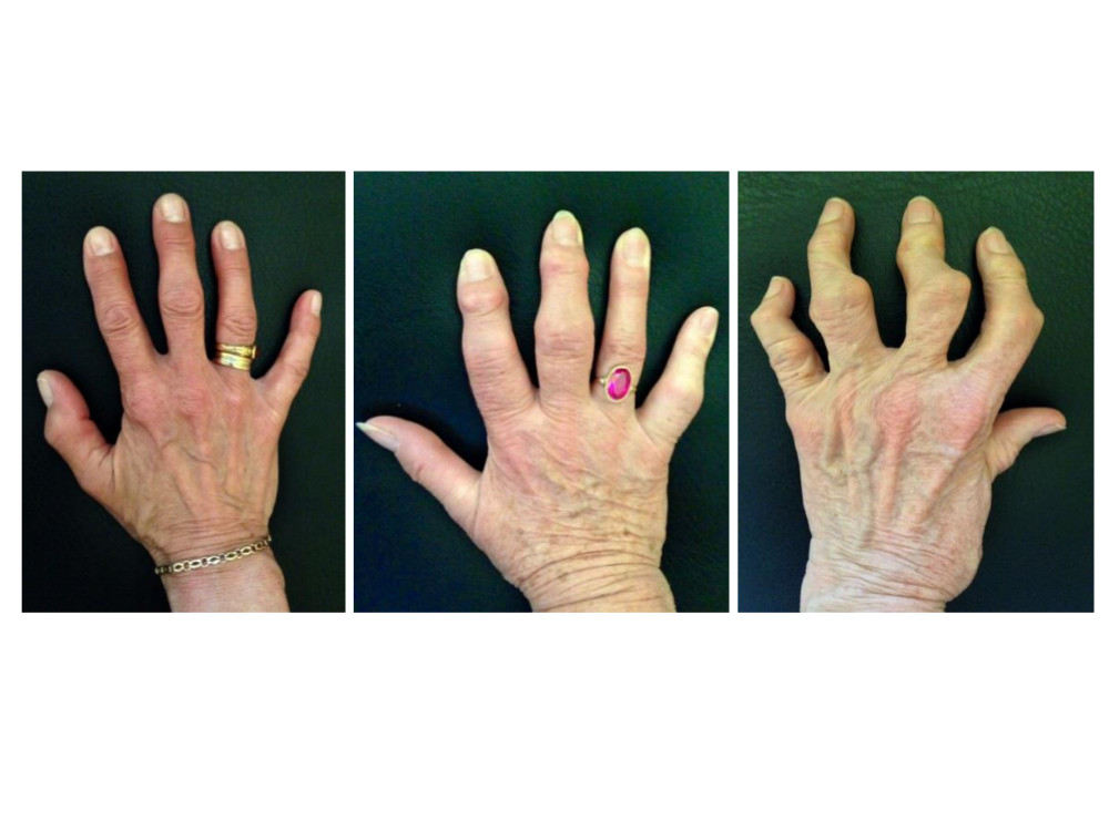 Osteoartróza (OA) kloubů ruky. Variabilní průběh nemoci mezi jednotlivými pacienty, tvorba uzlů v distálních a proximálních interfalangeálních kloubech a rozvoj těžkých kloubních deformit včetně kvadratizace kořenového kloubu palce u erozivní formy onemocnění (z archivu autora).