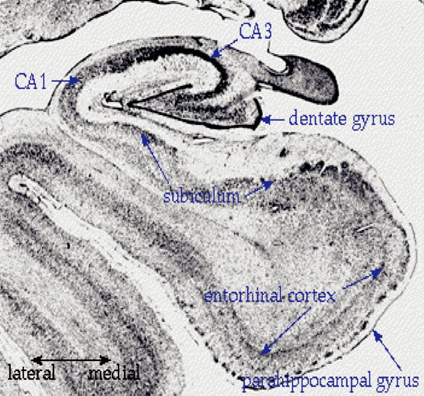 Hipokampální formace CA 1, CA 3 beze změn, Dentata gyrus Fascia dentata, Subiculum Subiculum, Entorhinal cortex Entorhinální kůra, Parahippocampal gyrus G, parahippocampalis, Lateral Laterální, Medial Mediální