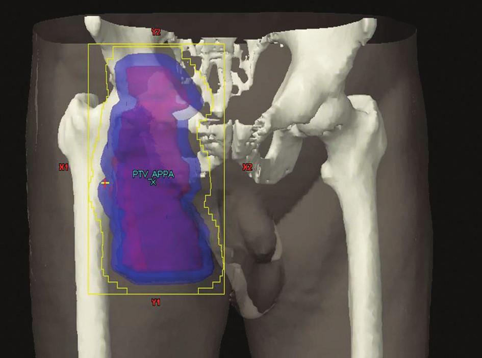 IF radioterapie na oblast tříselných uzlin Obrázek pochází z archivu Kliniky radiační onkologie Masarykova onkologického ústavu