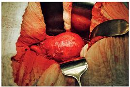 Aneuryzma břišní aorty v průběhu resekčního výkonu, vlevo odstup společných pánevních tepen