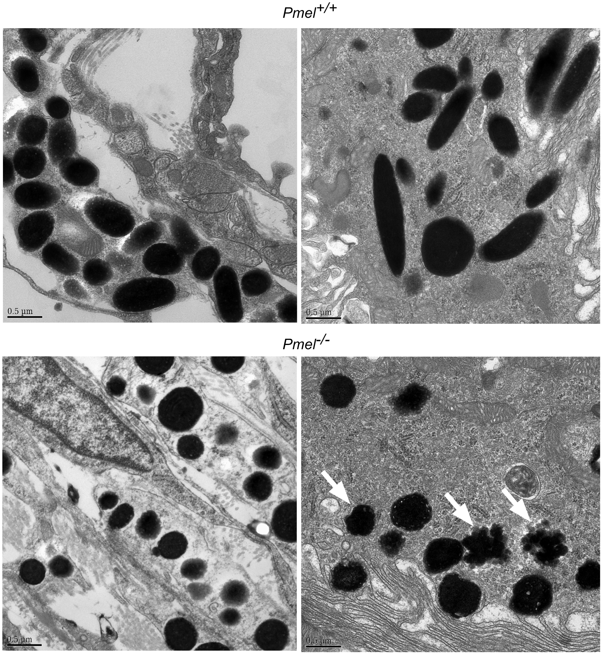 Electron microscopy of choroidal (upper and lower left micrographs) and RPE cells (upper and lower right micrographs), including melanosomes, from wild-type C57BL/6 mice (upper two micrographs) and <i>Pmel<sup>−/−</sup></i> mice (lower two micrographs), respectively.