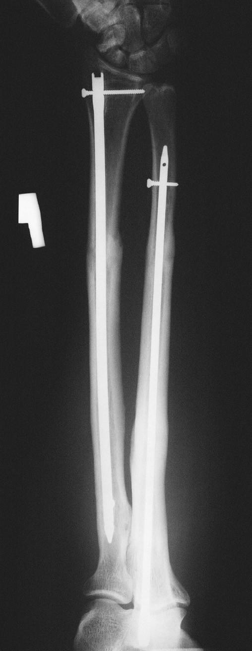 Obr. 1. a, b, c. Rentgenová dokumentace 25letého pacienta po pádu ze stromu s poraněním typu 22-C.1. – etážová zlomenina ulny (a). Provedena osteosyntéza pomocí hřebu (b), zhojeno po 16 týdnech (c)