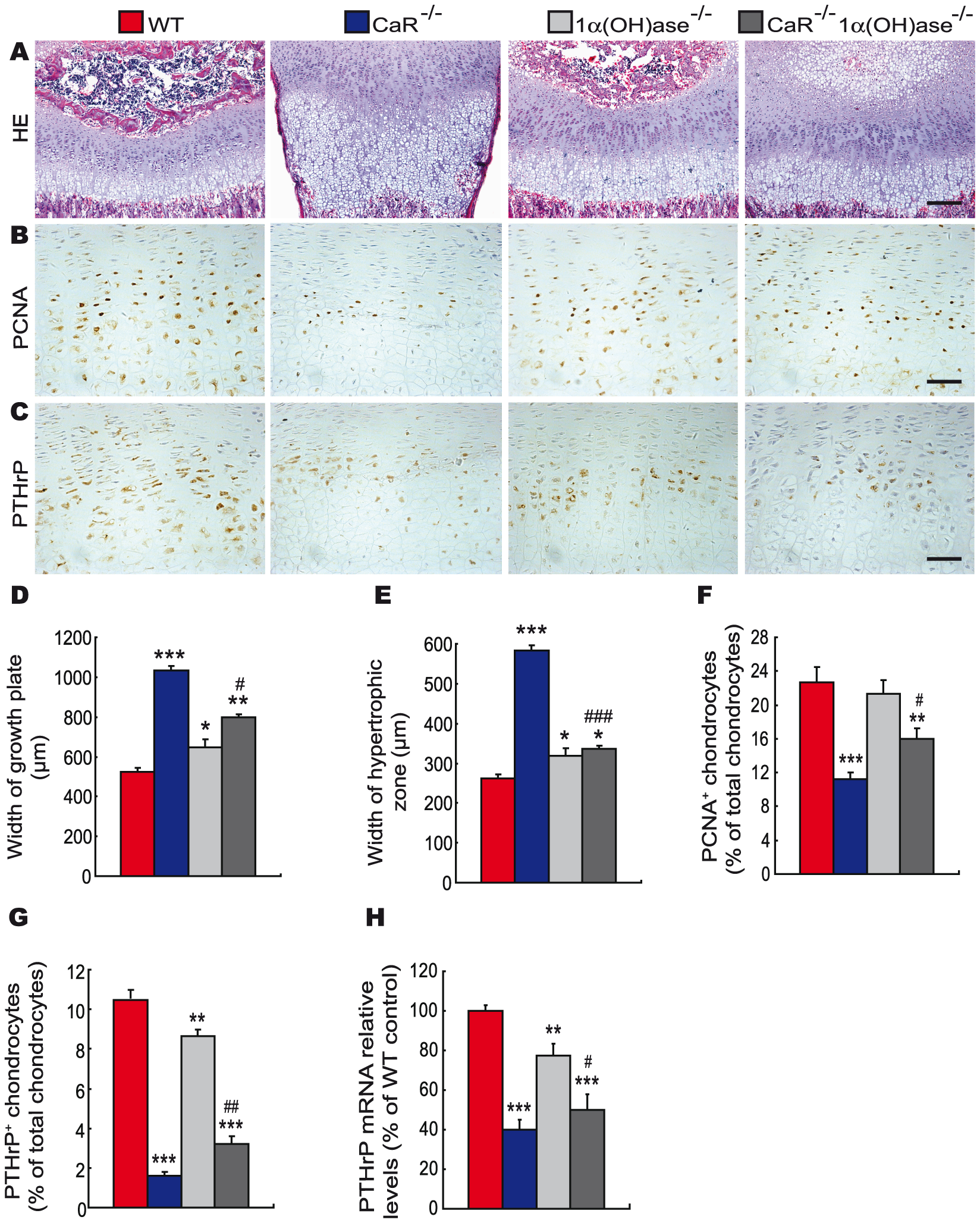 Effects of deletion of 1α(OH)ase on endochondral bone formation in CaR–deficient mice.