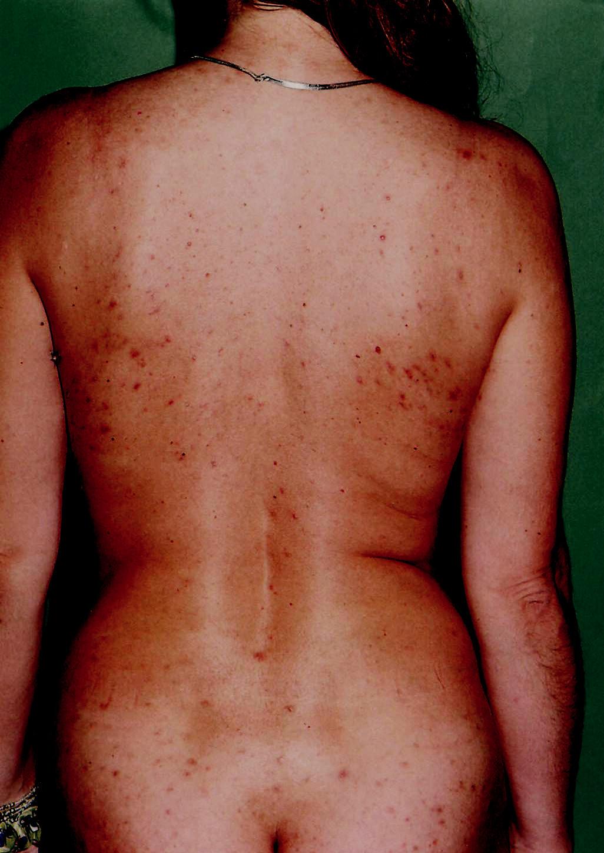 Folikulovo viazané papule na zadných častiach tela po 6 týždňoch od vzniku erupcií