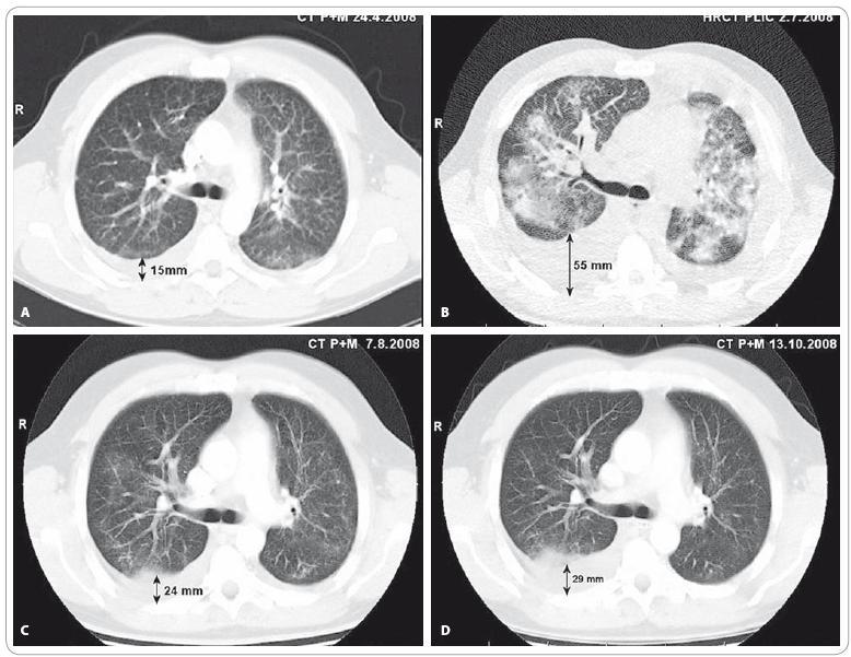 """A) CT vyšetření plic a mediastina v době před stanovením diagnózy bronchioloalveolárního karcinomu. V popisu CT a předchozího HRCT zhodnoceno jako: """"Oboustranný intersticiální plicní proces charakteru fi brotizující alveolitidy s mikro- až makronodulací."""" (Vyšetření provedeno mimo MOÚ). B) HRCT vyšetření plic provedené v době progrese onemocnění po 2. sérii iniciální chemoterapie v režimu karboplatina/paklitaxel: """"V plicním parenchymu oboustranně poměrně symetrická, výrazná alveolární infiltrace s max. perihilózně, spíše vynechávající periferní peripleurální partie plic, s patrným air-bronchogramem bilat. Ve srovnání s dokumentací z 24/4/08 nález ve výrazné progresi."""" V této době je pacient v celkově velmi špatném stavu (PS 3), manifestovaném zejména klidovou dušností (saturace SpO<sub>2</sub> 74 %, měřeno puzlním oxymetrem, bez oxygenoterapie) a intermitentním dávivým kašlem s bronchorrheou. C) CT vyšetření plic a mediastina provedené 1 měsíc od zahájení cílené léčby inhibitorem tyrozinkinázové aktivity EGFR – erlotinibem: """"Prokázána výrazná regrese velikosti i rozsahu měkkých převážně alveolarních infi ltratů v obou plicních křídlech a regrese pleurálních výpotků."""" D) CT vyšetření plic a mediastina provedené 3 měsíce od zahájení léčby erlotinibem: """"Další regrese nízce denzních infiltrátů v plicním parenchymu bilat. Fluidothorax vpravo lehce výraznější, vlevo regrese ad integrum. Uzliny v mediastinu již stacionární. Karcinomatóza skeletu stacionární."""" Vyšetření provedli: MUDr. Petr Opletal, MUDr. Renata Belánová, MUDr. Michal Standara."""
