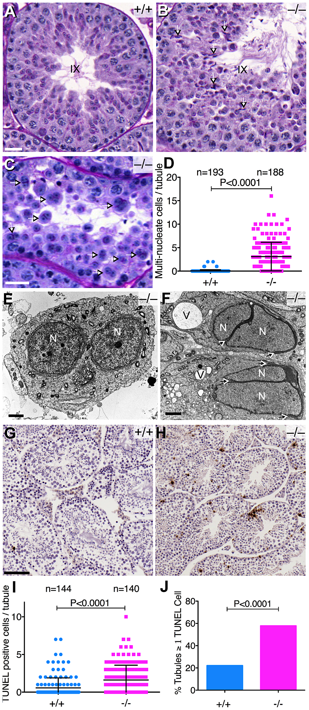 Abnormal spermatogenesis in the absence of <i>Baz1a</i>.