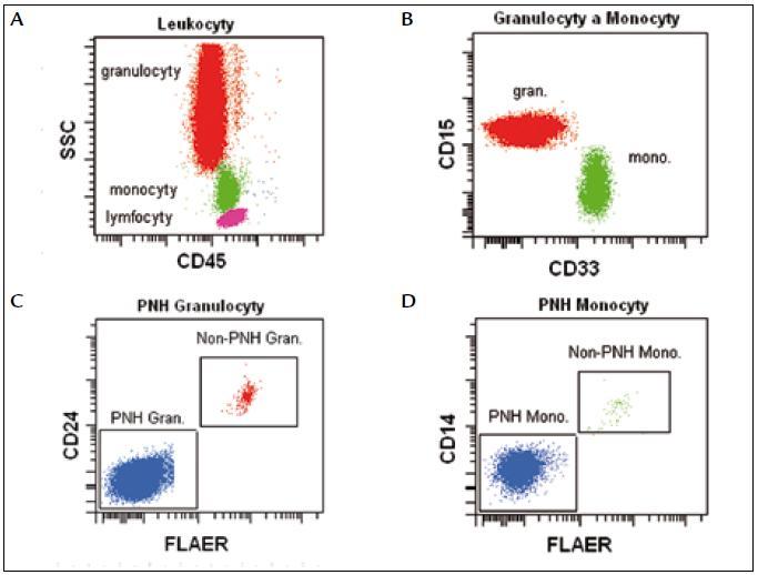 Leukocyty (lymfocyty, monocyty a granulocyty) definujeme na základě parametrů CD45/SSC (A). Granulocyty jsou CD15<sup<silně+</sup</CD33<sup>slabě+</sup>, monocyty CD15<sup>slabě+</sup>/CD33<sup>silně+</sup> (B). PNH granulocyty jsou FLAER<sup>neg</sup>/CD24<sup>neg</sup> (C), PNH monocyty jsou FLAER<sup>neg</sup>/CD14<sup>neg</sup> (D).