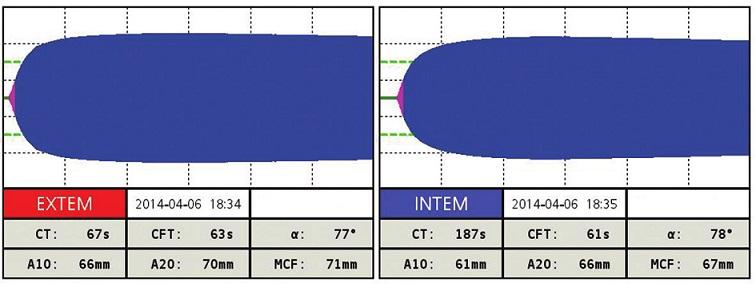 ROTEM po terapii pri INR 1,8 Všetky parametre EXTEM a INTEM sú v norme. Fig. 3: ROTEM after the treatment with INR 1.8 All parameters of EXTEM and INTEM are normal.