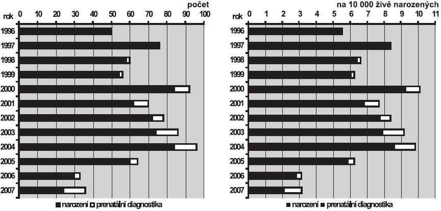 a. Absolutní počty transpozice velkých cév v ČR, 1996 – 2007 b. Relativní incidence transpozice velkých cév v ČR, 1996 – 2007