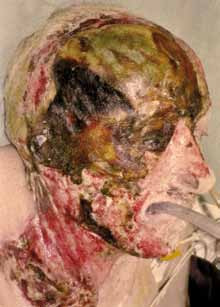 Fig. 2. In 2004 fall on stove → unconscious. Male: age 92, extent 4% TBSA, right half of head and neck, full thickness skin and skull loss. Transport to burn centre: i.v. cannula → fluid therapy, ET tube → futile treatment 6 weeks.