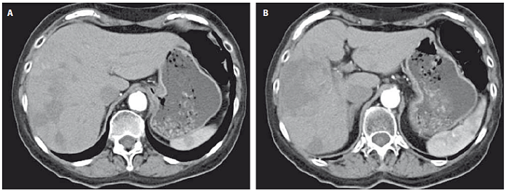 CT image prior to first TACE procedure (A) and after second TACE procedure showing partial right lobe necrosis (B).