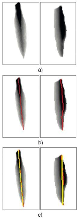 Snímky odpovídající krokům odhadu osy symetrie pro případ symetrického a nesymetrického chování hlasivek: