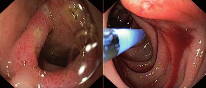 Ezofagogastroduodenoskopia. Vľavo: prechod D1–D2 duodena po ošetrení APC. Vpravo: aktívne krvácanie v D3 duodena. Fig. 1. Ezofagogastroduodenoscopy. Left: Interface D1–D2 of duodenum after treatment with APC. Right: active bleeding in D3 of duodenum.
