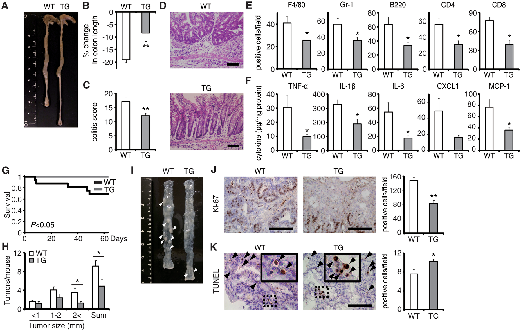 EPRAP overexpression in macrophages ameliorates DSS-induced colitis and colitis-associated tumorigenesis.