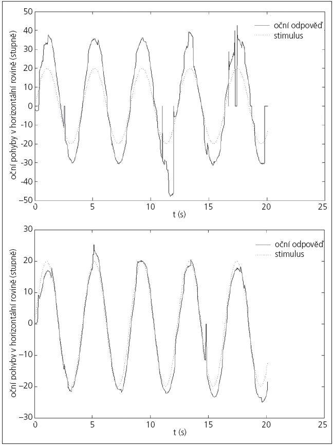 Graf 2a, b. Případ, kdy se VOG záznam signifikantně pooperačně nezměnil (2b).