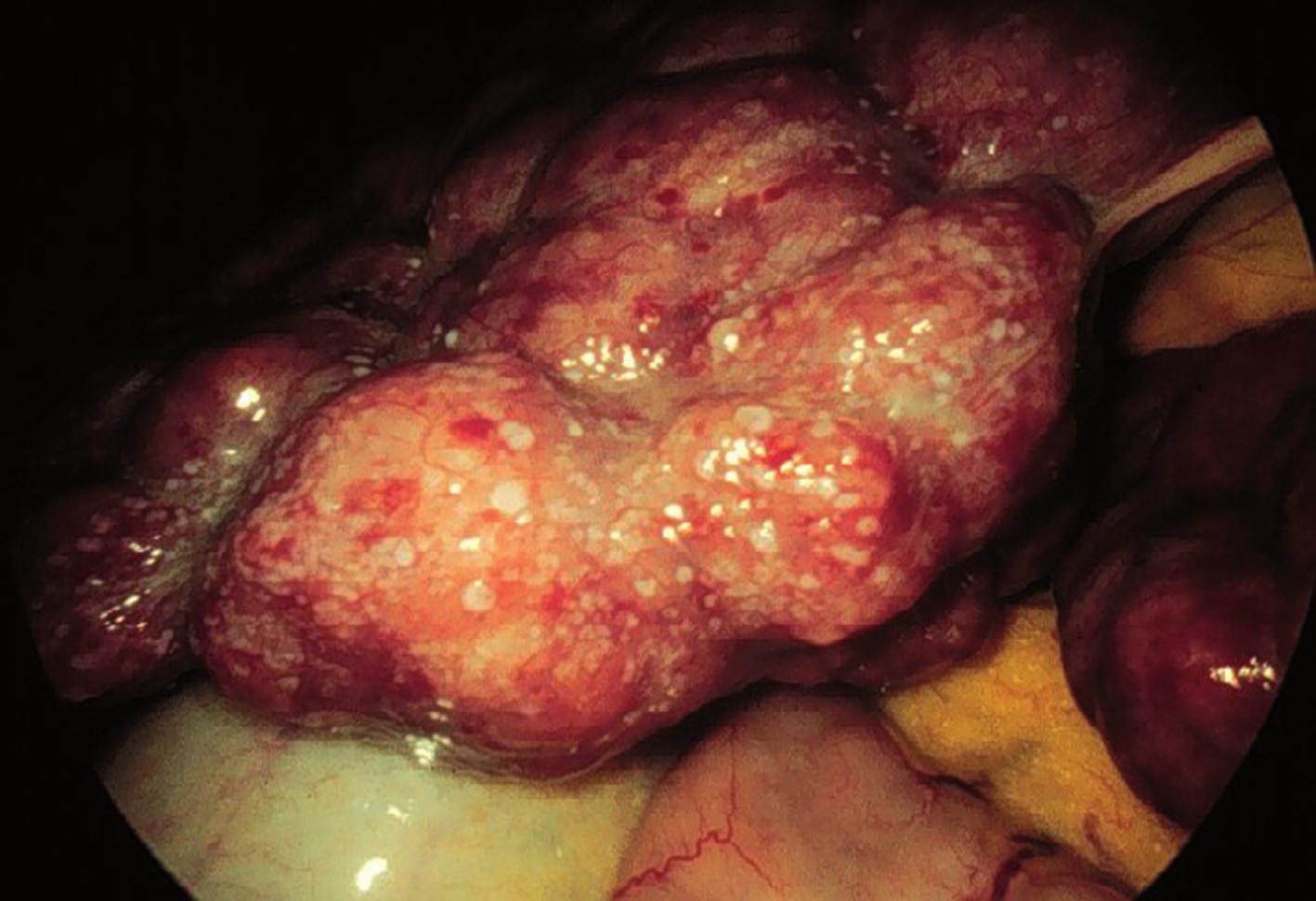 Autoimunitní hepatitis – makroskopický obraz.