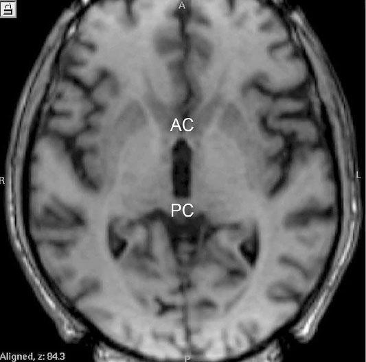 Přední (AC) a zadní (PC) komisura na horizontálním řezu magnetické rezonance