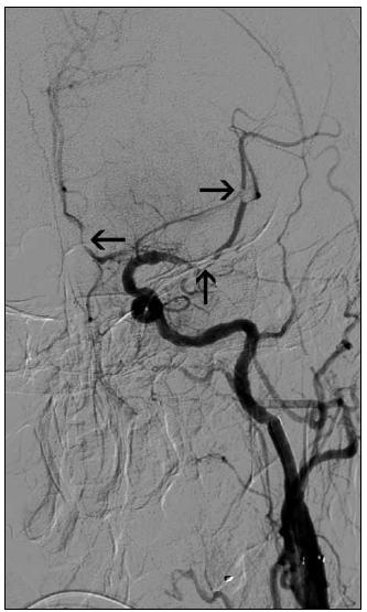 Obr. 5c. V intrakraniální části řečiště jsou patrny okrsky reziduální trombózy (šipky) v řečišti a. cerebri media a a. cerebri anterior.