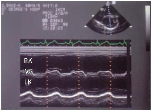 """Záznam M-modu u pacienta s defektem septa síní ukazuje zvětšenou pravou komoru a obrácený/reverzní (""""paradoxní"""") pohyb přepážky značící objemové přetížení pravé komory."""