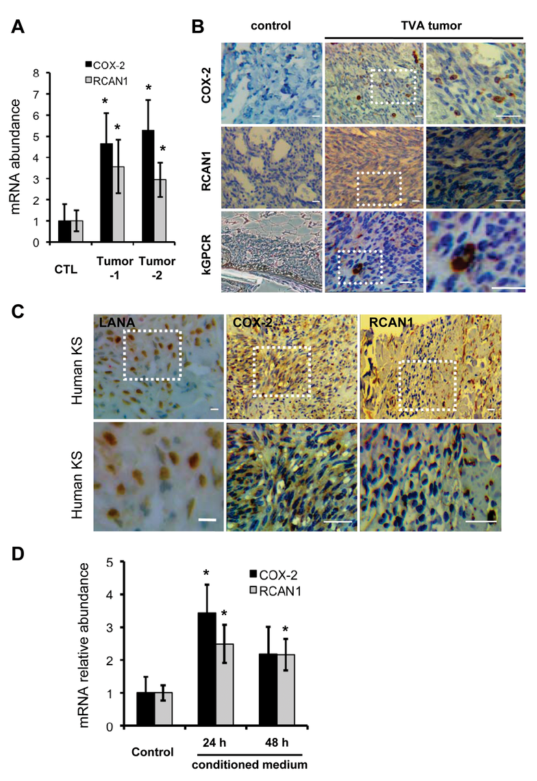 NFAT activation in mouse KS-like lesions and human KS tumors.