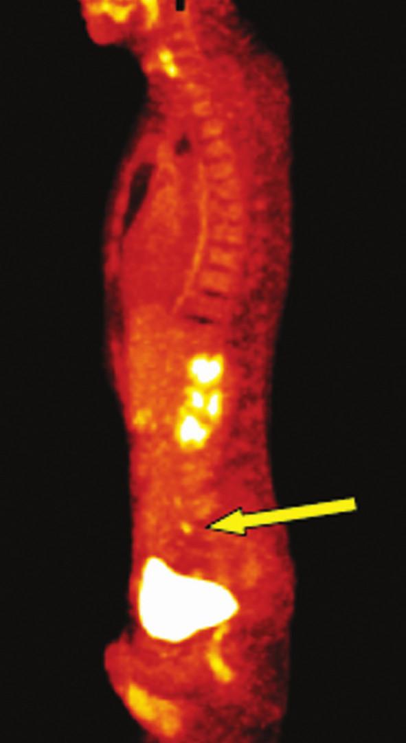 Metastázy v oblasti pánevních cév vlevo