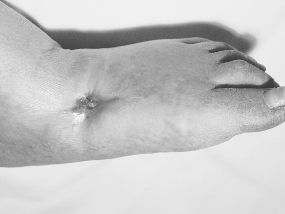 Diabetická noha po absolvování 90 expozic HBO