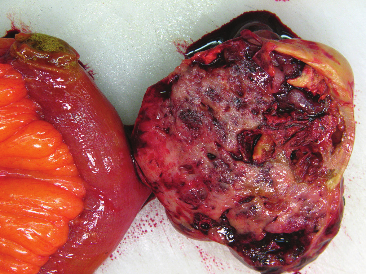Gastrointestinální stromální tumor ilea Fig. 3: Gastrointestinal stromal tumor of the ileum