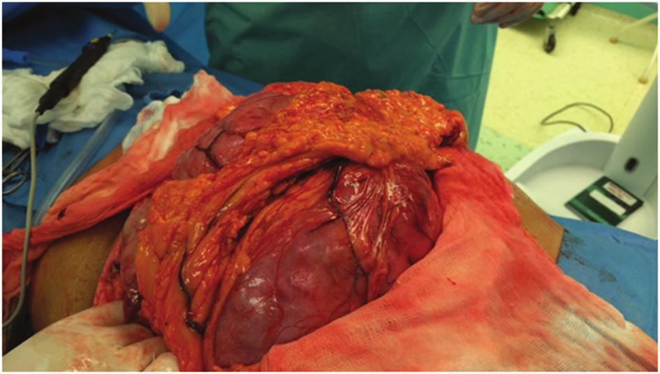 Peroperační nález-postupná luxace tumoru do příčné laparotomie Fig. 3: Intraoperative finding – progressive dislocation of the tumor to transverse laparotomy