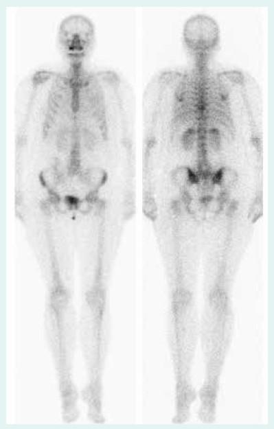 Scintigrafie (duben 2013) – regrese patologické infiltrace v Th10 a plicní aktivity