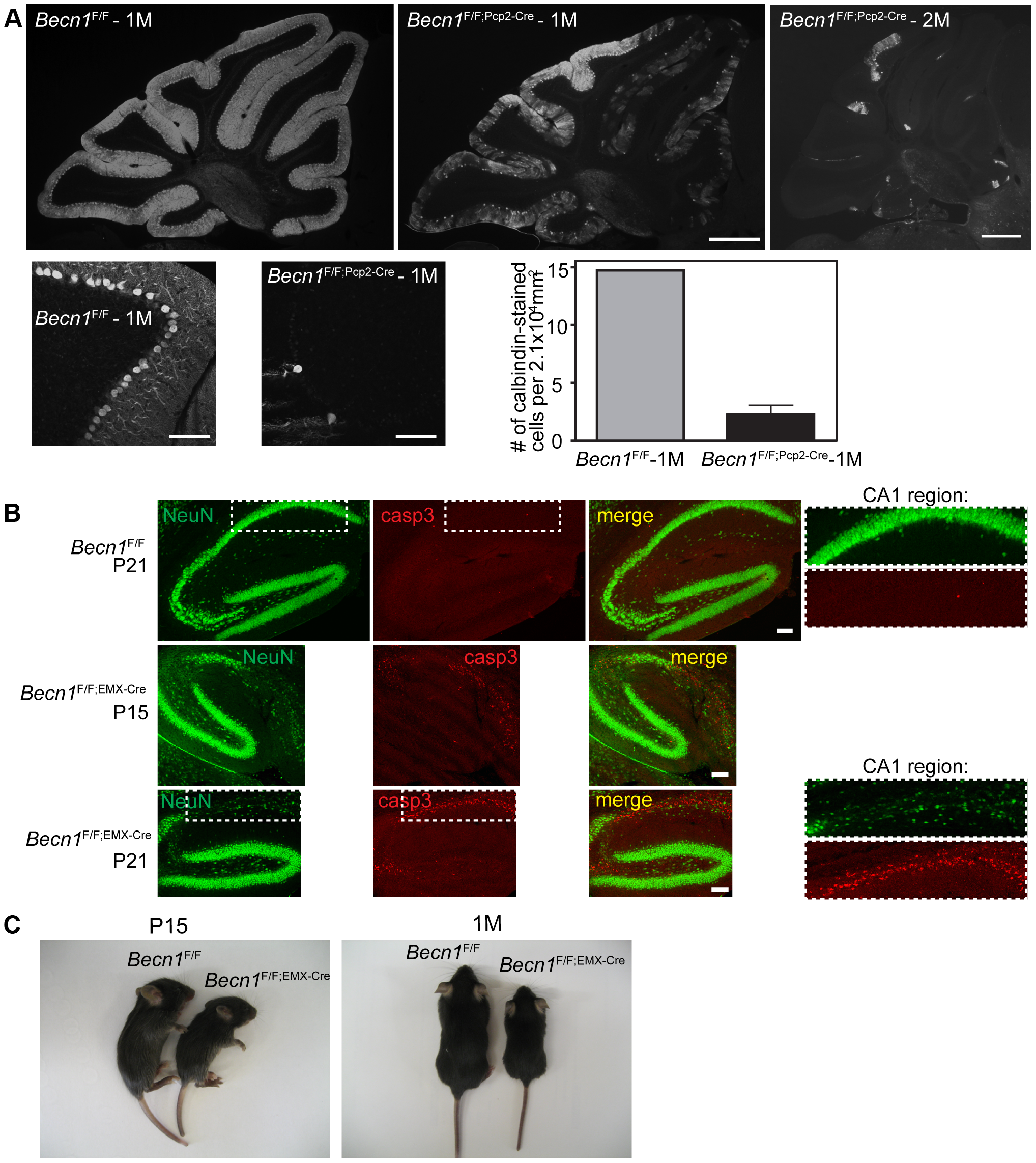 Loss of beclin 1 in selected neurons leads to rapid degeneration.