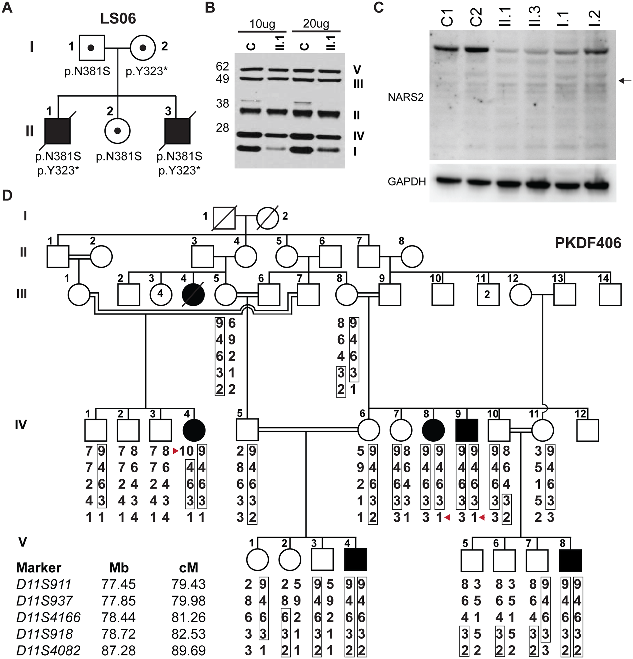 <i>NARS2</i> mutations identified in two unrelated families.