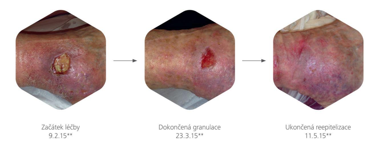 Obr. 1 Od čištění kepitelizaci rány díky hydroresponzivnímu krytí (zdroj: Hartmann-Rico)