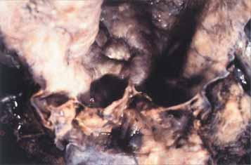 Ankylozující spondylitida s aortální regurgitací. Kořen aorty je dilatován, intima vrásčitá, cípy chlopní zkroucené a scvrklé.