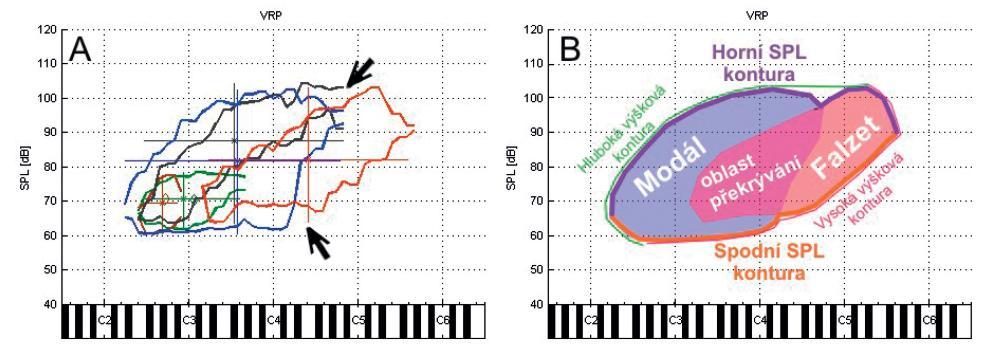 """A) změřené SPL obrysové kontury autora při úlohách: habituální čtení (zelená), počítání (hnědá), gradace volání (šedá), zpěv vokálu """"a"""" v modálním rejstříku (modrá), zpěv vokálu """"a"""" ve falzetovém rejstříku (červená). Šipky znázorňuji výrazné zlomy v obrysech celkového hlasového pole, kde se setkávají hlasové rejstříky. B) schéma rozložení modálního a falzetového rejstříku při zpěvu, výškové a SPL kontury."""