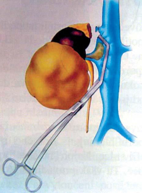 Tumor pravé ledviny s trombem hladiny I–II (nasazení Satinského svorky) [24].