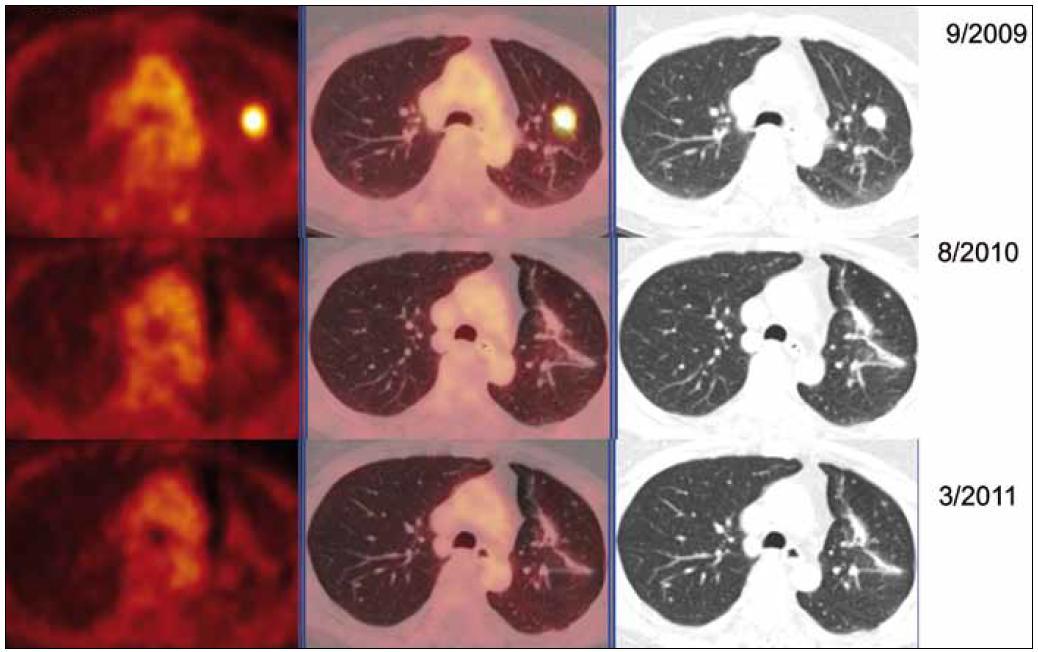 """PET-CT zobrazení plicních ložisek v čase (září roku 2009, srpen roku 2010, březen roku 2011), axiální řezy, ve sloupcích zleva PET, PET/CT a CT. PET obraz je v barevné škále """"Hot Body"""", řazeno odshora. Metabolicky aktivní ložisko (SUV<sub>max</sub> 8,03 velikosti 20 × 16 mm) v S1/2 v levém plicním křídle bylo patrné pouze na vyšetření v září roku 2009, toto ložisko bylo operativně odstraněno, a proto dále pozorujeme jen jizevnaté změny, bez vývoje."""