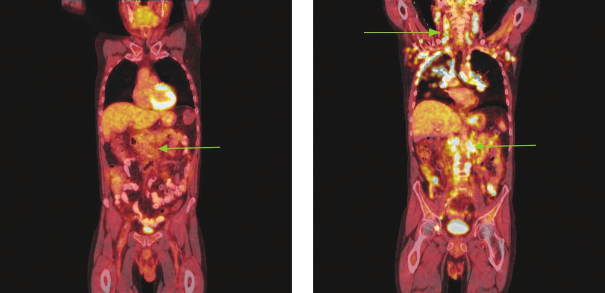 Série PET/CT snímků u nemocného s difuzním B-velkobuněčným lymfomem po imunochemoterapii a při relapsu choroby o 18 měsíců později. Na prvním snímku po léčbě nalezeny pouze zvětšené lymfatické uzliny mediastina a měkkotkáňová masa v retroperitoneu podél aorty od odstupu renálních tepen po bifurkaci nevykazující hypermetabolismus glukózy. Pro kumulaci rizikových faktorů indikována radioterapie na zbytkovou masu retroperitonea. Na druhém snímku obraz relapsu choroby, kdy nalezeny mnohočetné zvětšené lymfatické uzliny na krku, v oblasti tonzil, v axilách, ve všech oddílech mediastina, v retroperitoneu podél aorty a dolní duté žíly splývající v pakety, v lymfatických uzlinách na mezenteriu, podél pravé ilické tepny, dále pak ve vícečetných ložiscích obou plic a ve skeletu pravého acetabula vykazující hypermetabolismus glukózy.