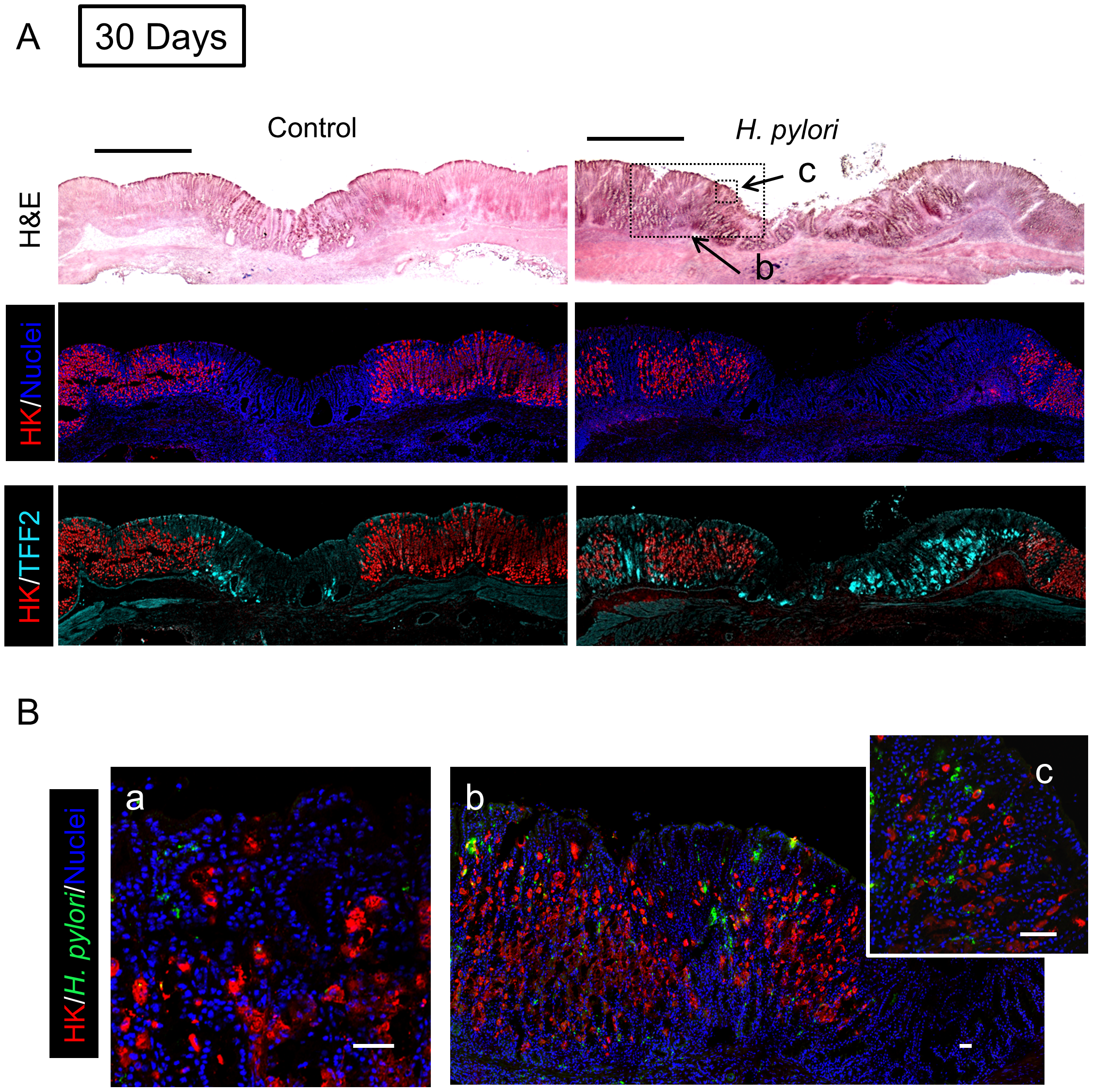 Morphology of gastric ulcerated tissue 30 days after <i>H. pylori</i> inoculation.