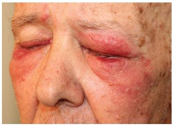 Náhlý vznik kožních infiltrátů na očních víčkách a v okolí očí