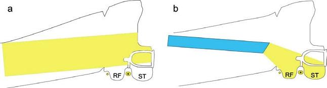 Přehlednost oblasti třmínku při použití mikroskopu (vlevo) a při použití 30stupňového endoskopu (vpravo). RF - recessus facialis, ST - sinus tympani, * tvářový nerv.