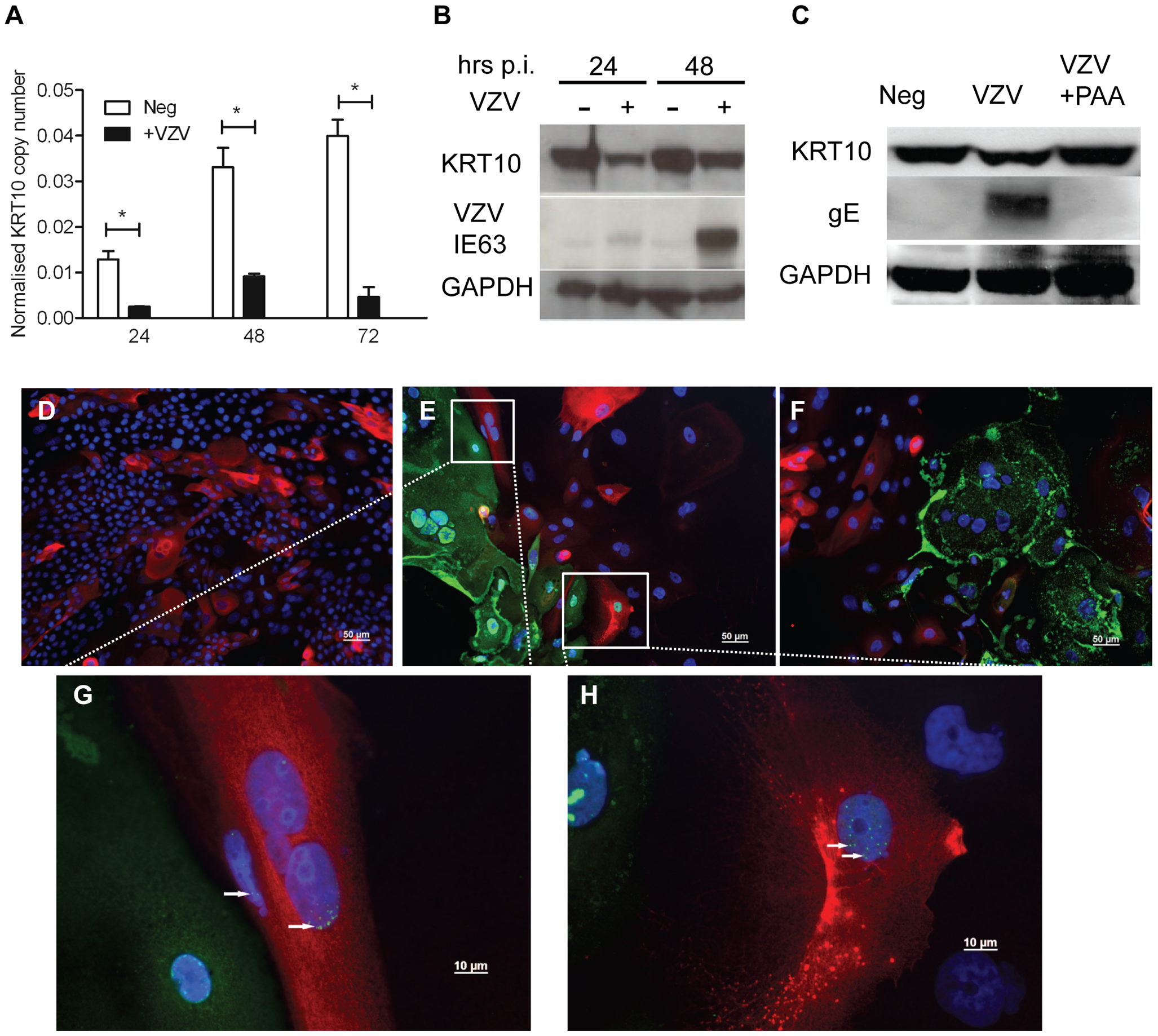 Confirming the downregulation of KRT10 by VZV in a keratinocyte cell line.
