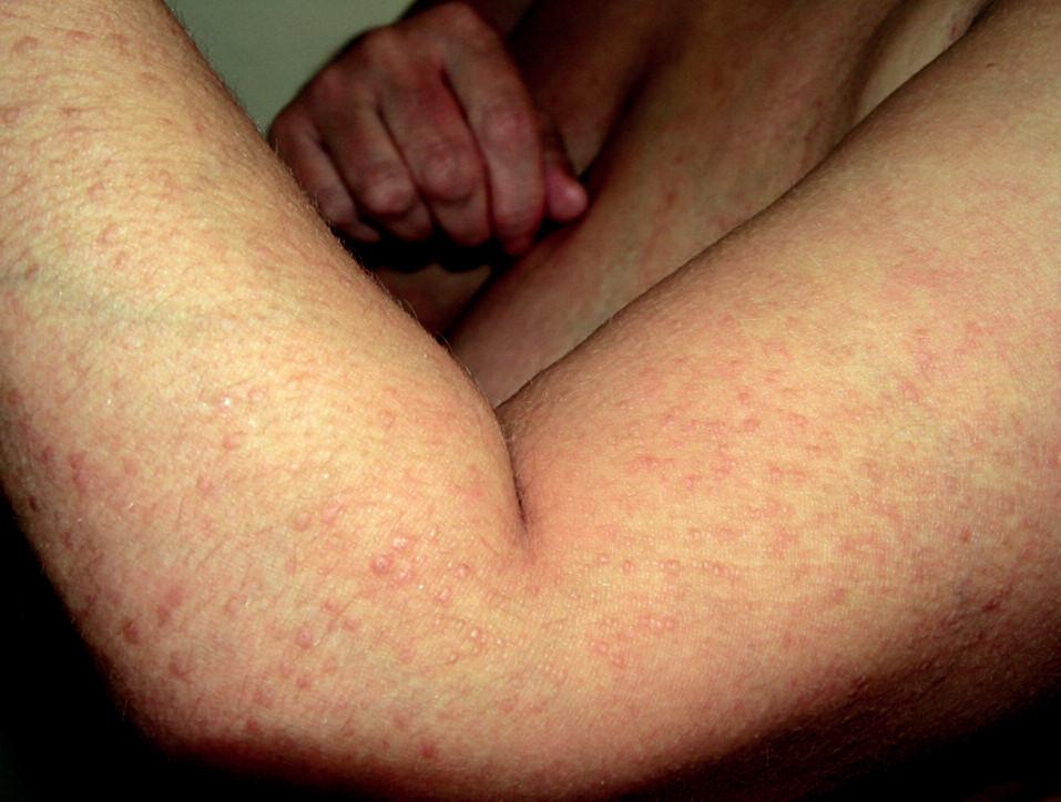 Lichen amyloidosus – laterální strana levého předloktí a paže.