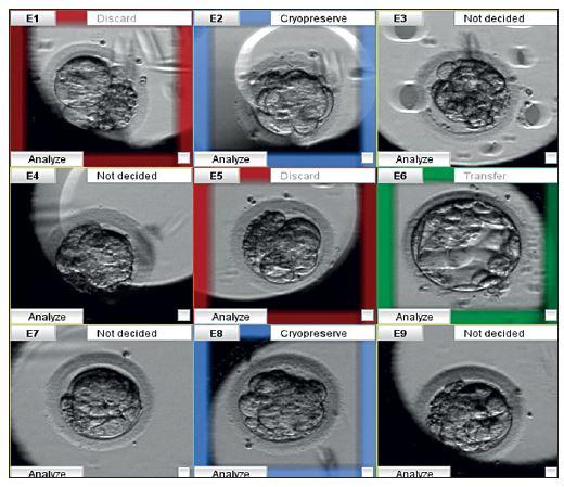 Monitoring vývoje embryí pomocí time-lapse systému