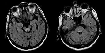MRI mozku, transverzální vrstvy sekvence FLAIR. Patologické zóny T2 hyperintenzního signálu v oblasti colliculi inferiores (a) a horních mozečkových pedunkulů (b).