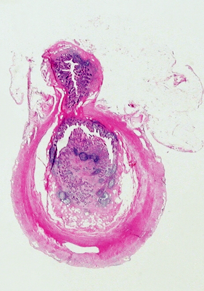 Obr. 3. Histopatologický obraz divertikulózy a divertikulitídy apendixu vermiformis, farbenie HE, zväčšenie: a) 4x b) 40x c) Histotopogram – divertikel apendixu Pic. 3. Histopathological image of diverticulosis and diverticulitis of appendix vermiformis, coloring HE, enlargement a) 4x b) 40x c) 4x d) 40x c) Histotopogram, divertickel of the appendix