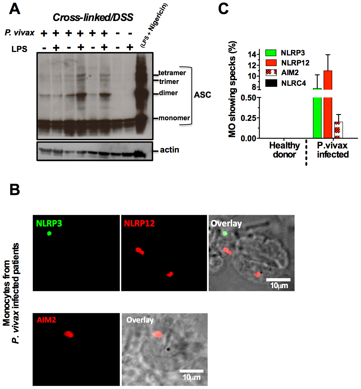 NLRP3/NLRP12 containing inflammasomes and caspase-1 activation in PBMCs from <i>P. vivax</i> malaria patients.