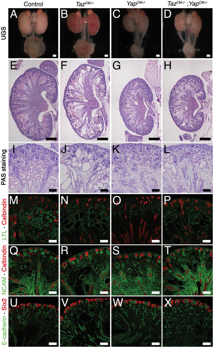 <i>Yap</i> and <i>Taz</i> have distinct roles during nephrogenesis.